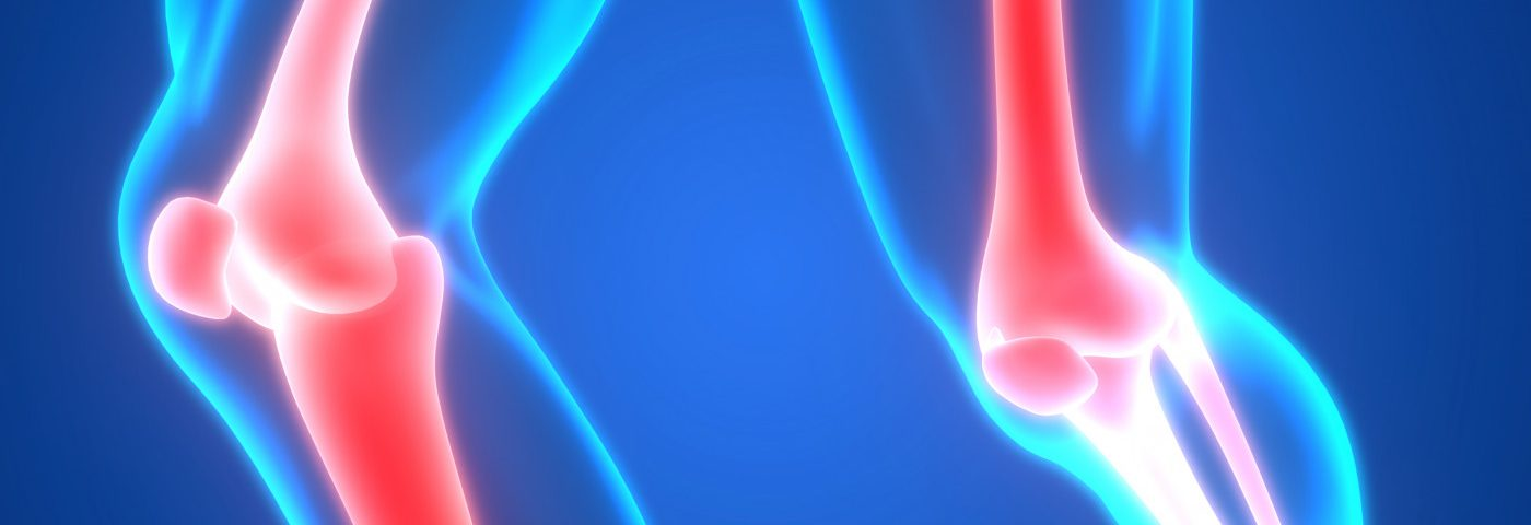 Low PTH Levels May Lead to Greater Risk of Fractures in Hypoparathyroidism, Study Suggests